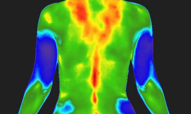 My Thermography Journey
